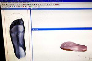 Einlegesohlen Massanfertigung mit 3D Scan tests technik Test Fussbrennen Fussbeschwerden Einlegesohlen